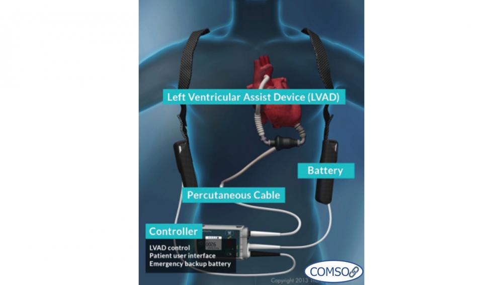 یکی از کاربردهای کامسول در صنعت پزشکی
