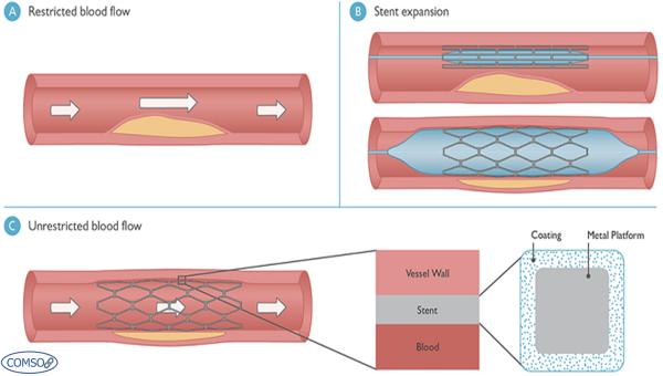 کاربرد کامسول در صنعت پزشکی